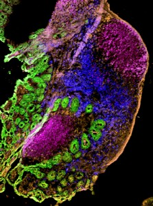 Visualizing bacterial infection in the intestine. Soon after eating Listeria (red) the bacteria can be seen in the Peyer's patches of the intestine. (magenta=B cells); green=intestinal villi; blue=innate immune cells.) (Photo provided by Daqi Xu)