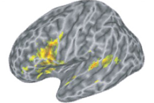 Brain areas involved in speech processing. (Emily Myers/UConn Image)