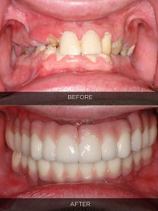 before_and_after_prosthodontics