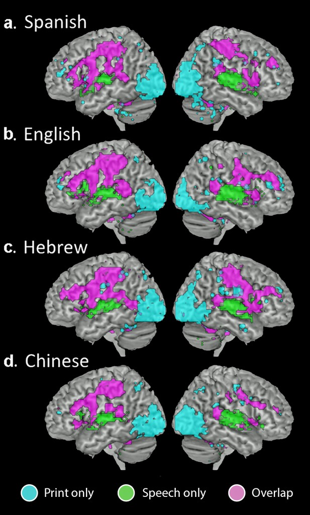 Intersect maps showing brain regions that are active for print only (cyan), speech only (green), or both print and speech (magenta). (Image courtesy of PNAS.)