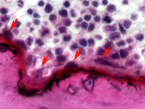 Four separate osteoclasts (shown by the arrows) resorbing bone at the interface between bone and marrow in the Hajdu-Cheney mouse's x-section. (Image courtesy of Ernesto Canalis, UConn Health)