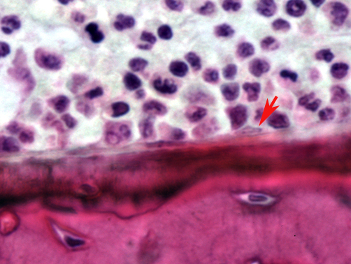 The wild type mouse shows just a single osteoclast resorbing bone. (Image courtesy of Ernesto Canalis, UConn Health)