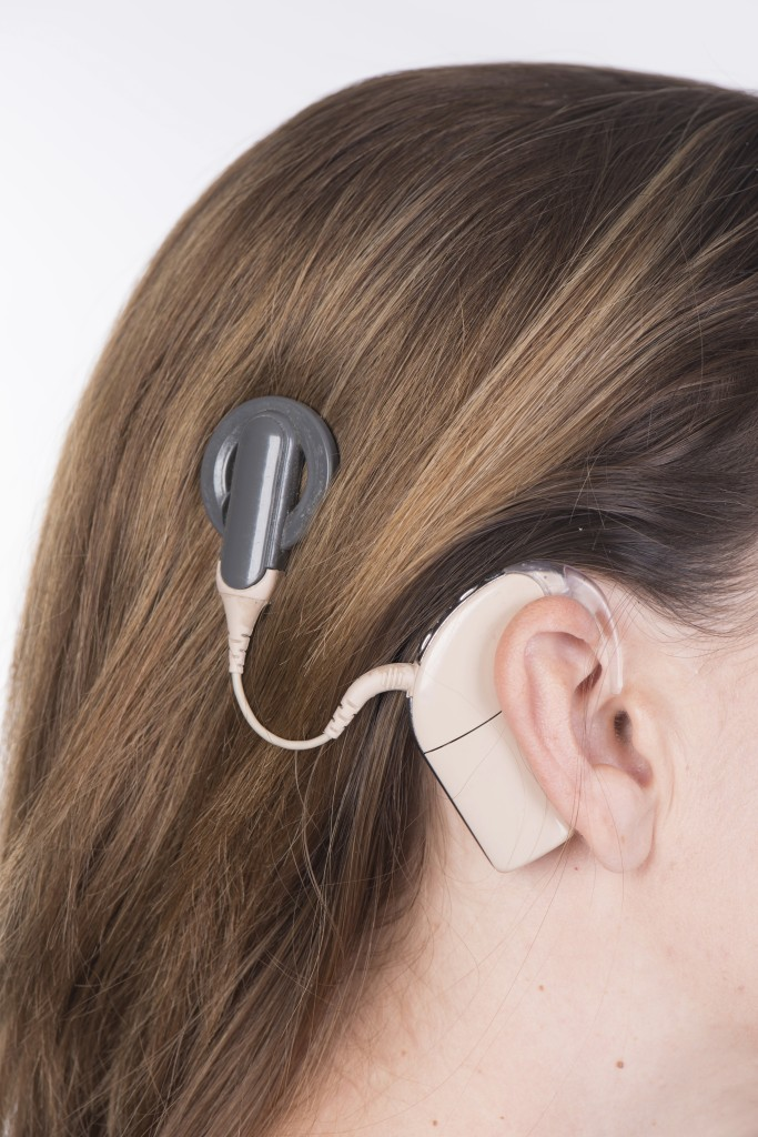 Young woman with cochlear implant close up. (iStock Photo)