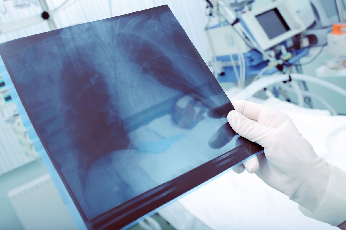 A doctor examines a patient's chest x-ray, checking for possible pneumonia. (Shutterstock Photo)