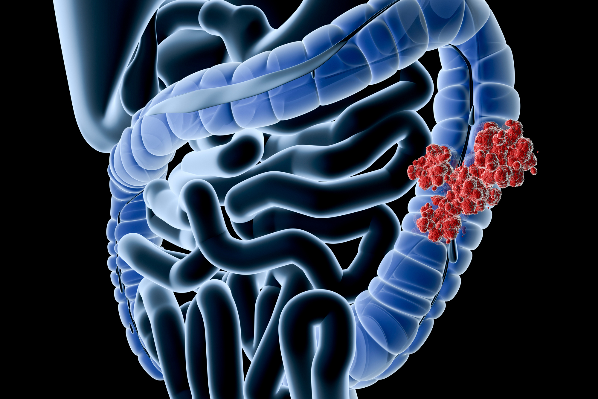 Illustration of an X-ray view of a human colon with tumor. (Getty Images)