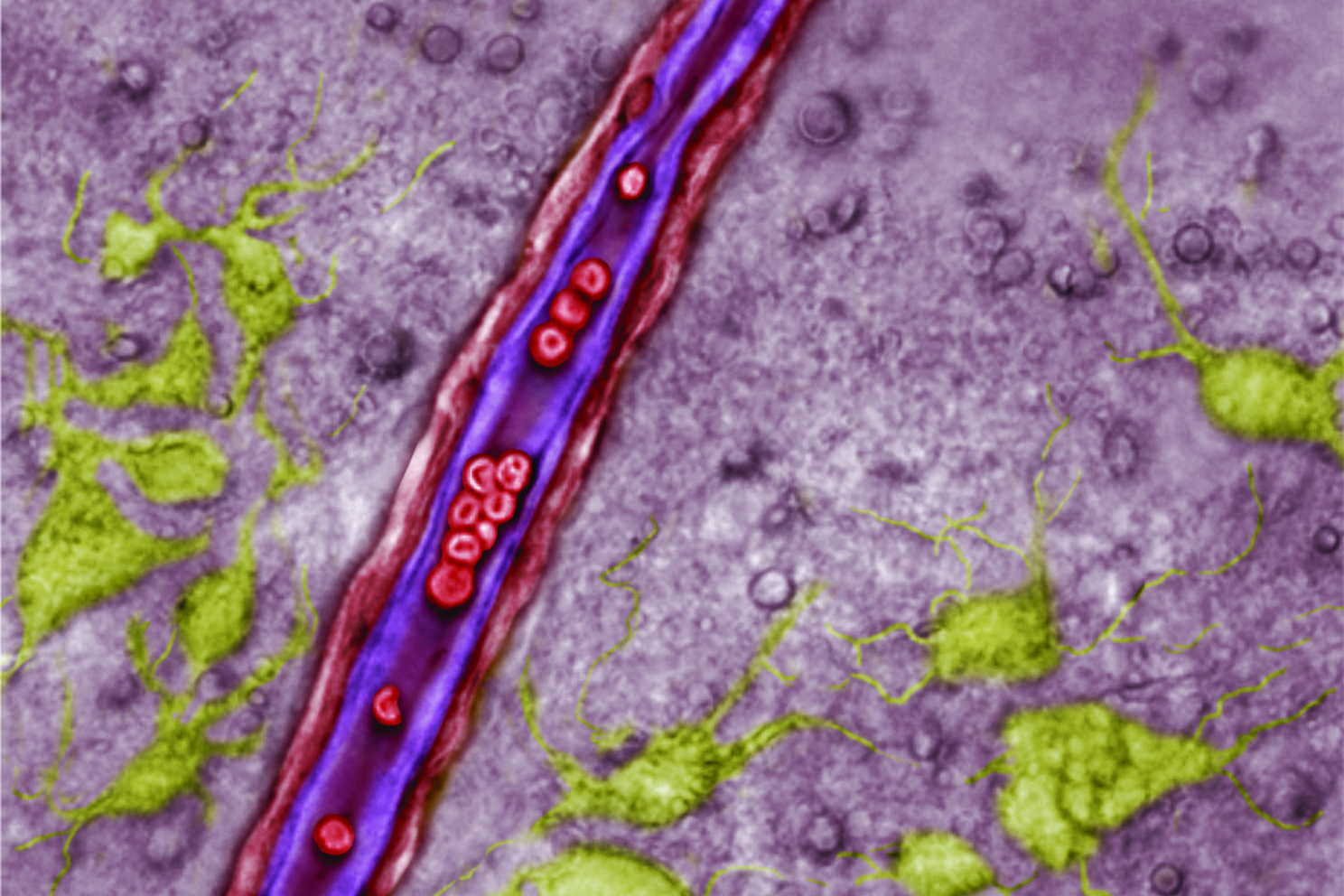 A blood vessel in the retrotrapezoid nucleus (RTN). Endothelial cells lining the vessel are purple, red blood cells are red, and neurons are green. Astrocytes are not identified in this image, but would be among the greyed background cells. (Dan Mulkey/UConn Image)
