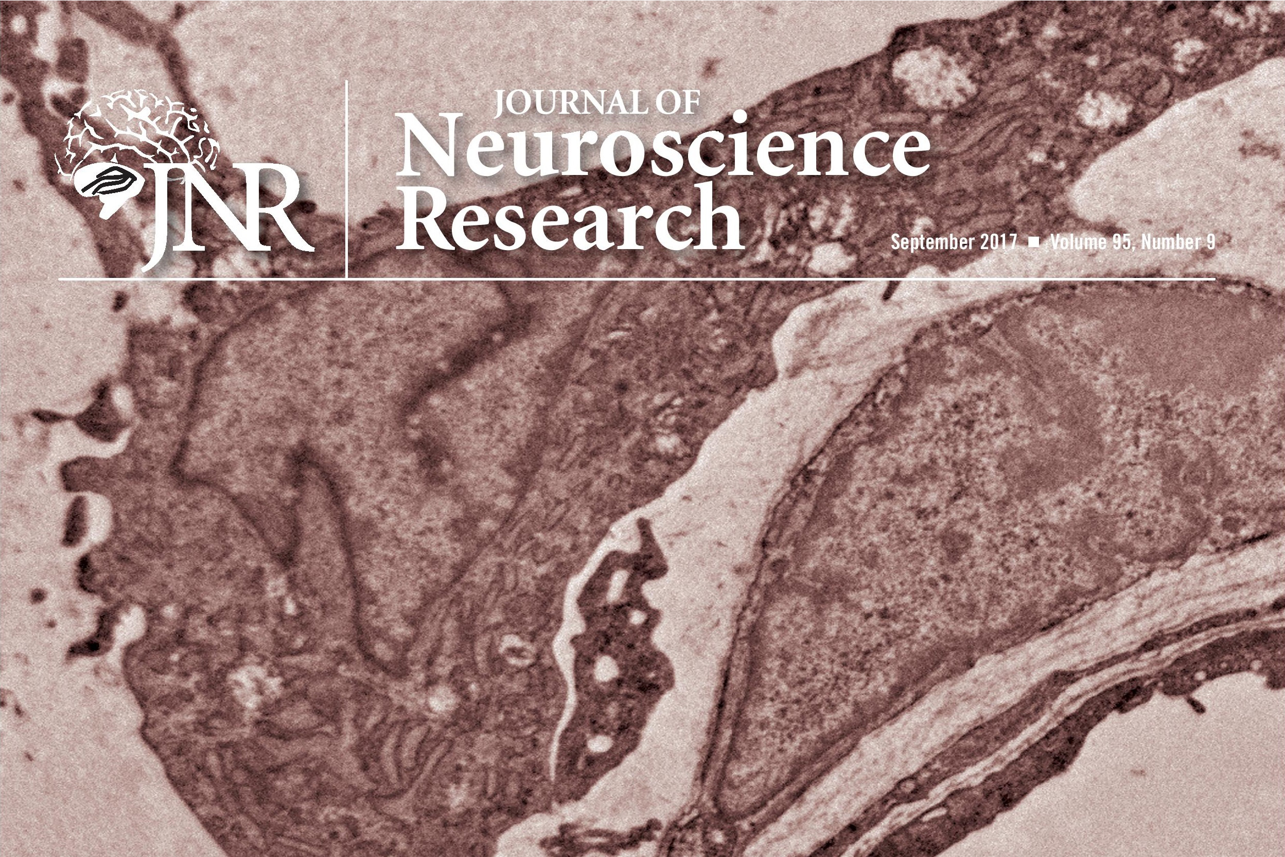 UConn Health's study will be Journal of Neuroscience Research cover story.