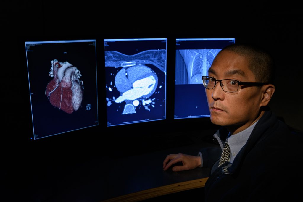 Dr. Clifford Yang looks over a 3-D printed model of a heart, and x rays at UConn Health. (Peter Morenus/UConn Photo)