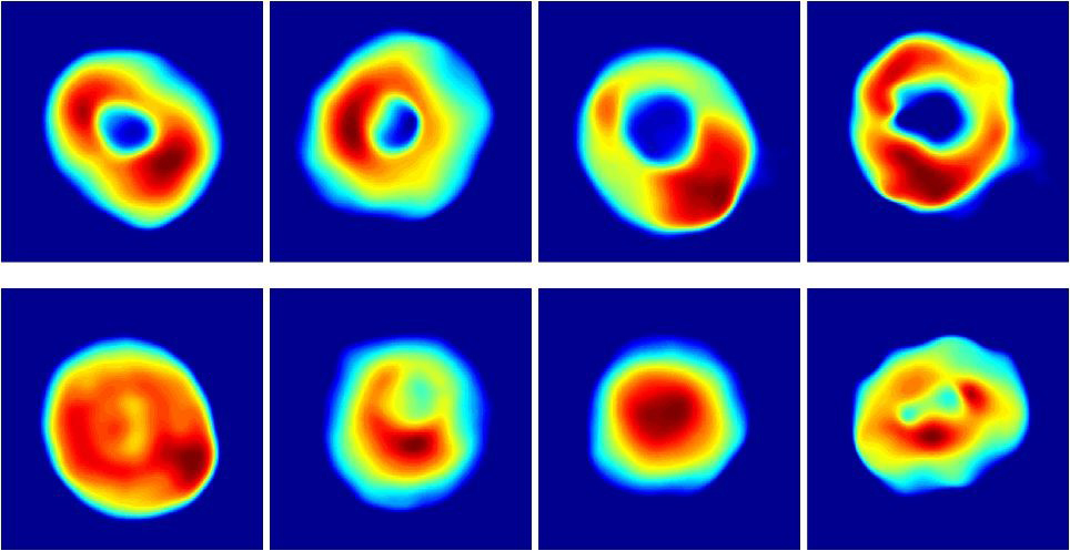 Quantitative phase profiles of healthy red blood cells (top row) and malaria infected cells (bottom row). (Image courtesy of Bahram Javidi)