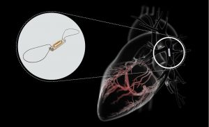 The miniature CardioMEMS device is minimally invasively implanted into a patient's pulmonary artery to immediately detect any early rise in pressure (Image by Abbott).