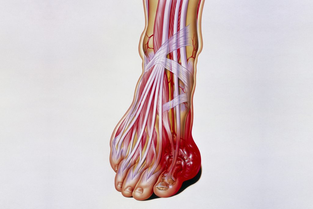 Illustration of the internal anatomy of a foot, showing a tophus (swelling) due to gout. The large toe is commonly affected. (John Bavosi/Science Photo Library via Getty Images)