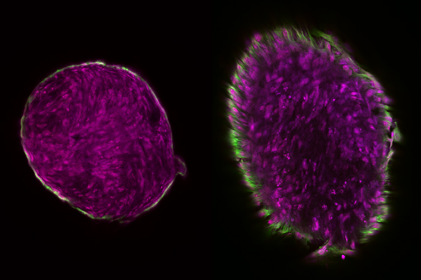 Cartilage template formation via engineered extracellular matrix. (Syam Nukavarapu/UConn Photo)
