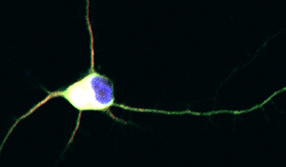 An image of immature retinal ganglion cell neuron from Dr. Trakhtenberg's research, adapted for a cover page of the International Review of Neurobiology volume on Axon Growth and Regeneration (Goldberg & Trakhtenberg, Eds, 2012, Vol 106: Academic Press)