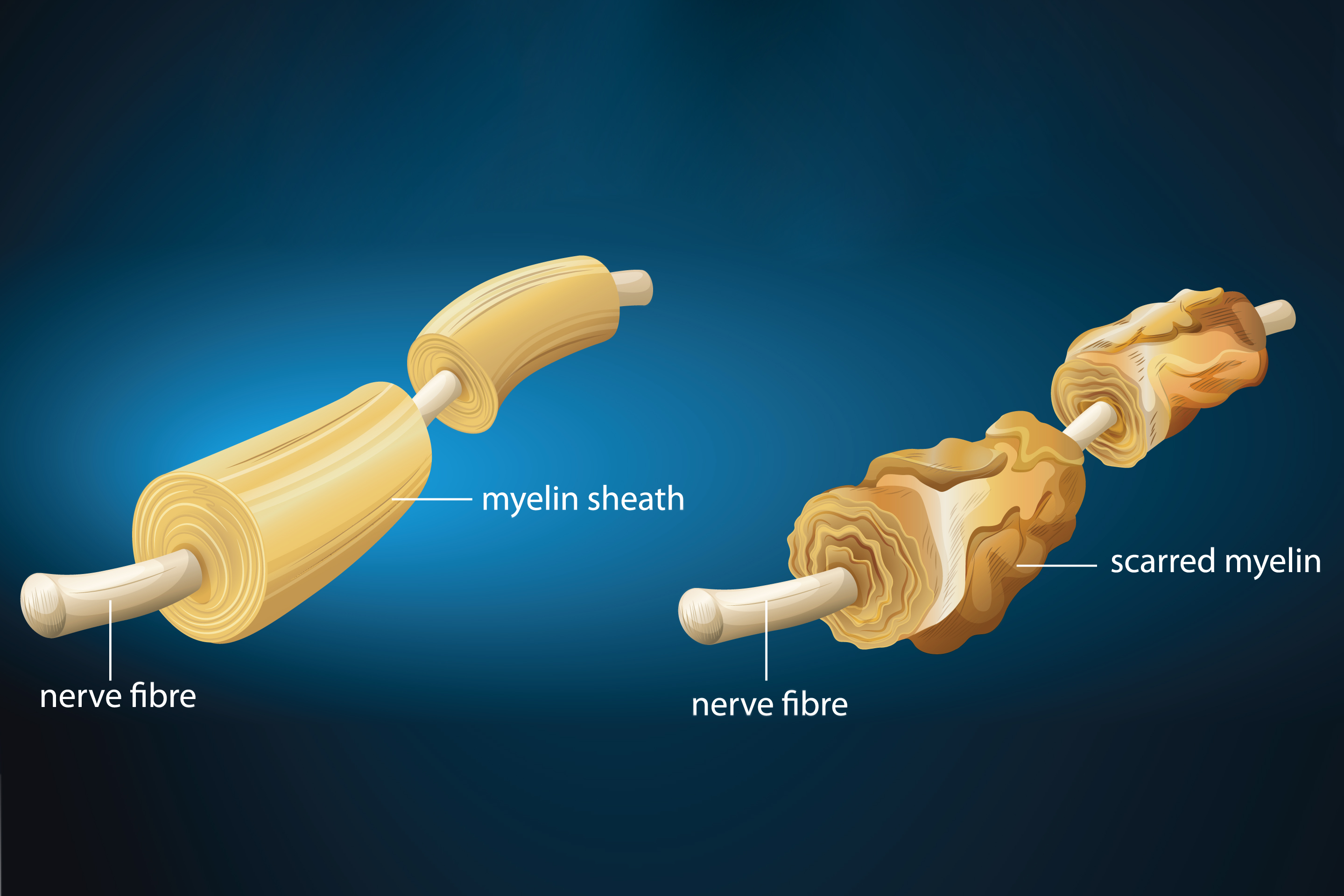 Multiple Sclerosis with demyelination. (Shutterstock Image)