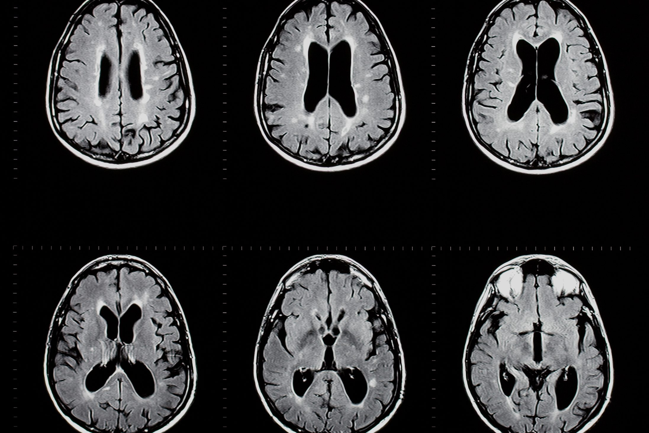 MRI exam of the human brain showing multiple sclerosis plaques. (Getty Images)