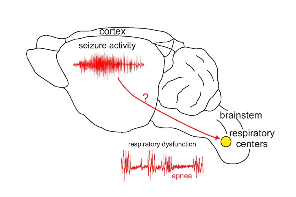 A mouse brain, showing how mutations in Scn1a may cause cortical seizure activity and directly interfere with brainstem respiratory activity and so contribute to death. (Figure by Dan Mulkey & Virge Kask)