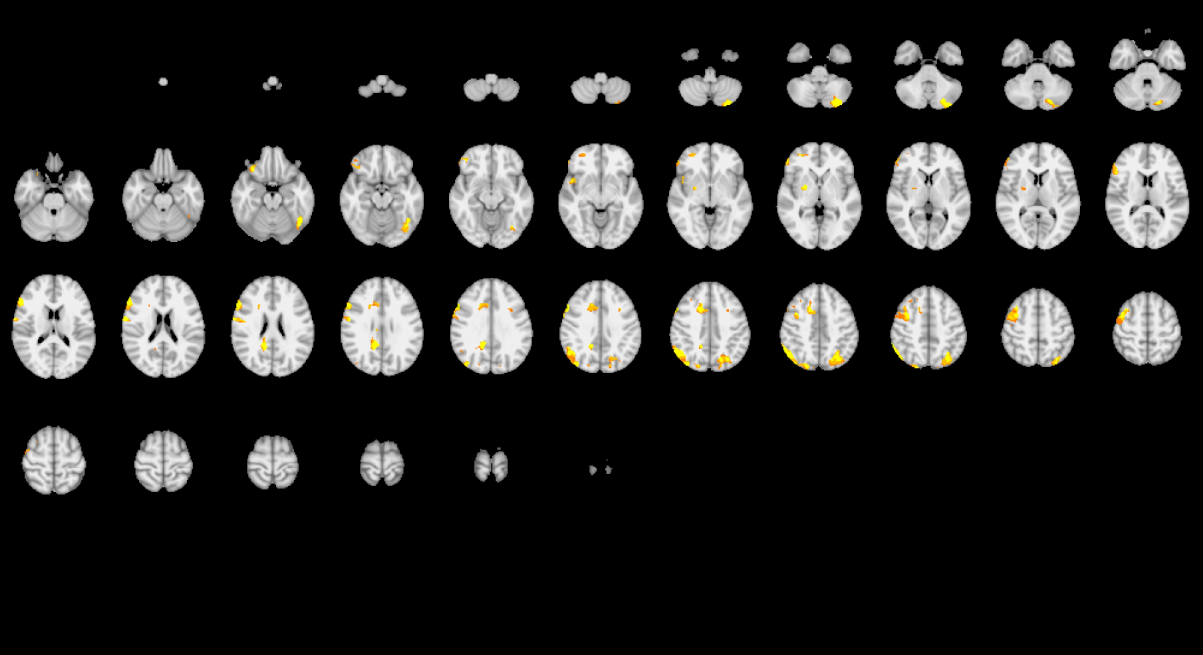 Two sets of imagery from brain analyses