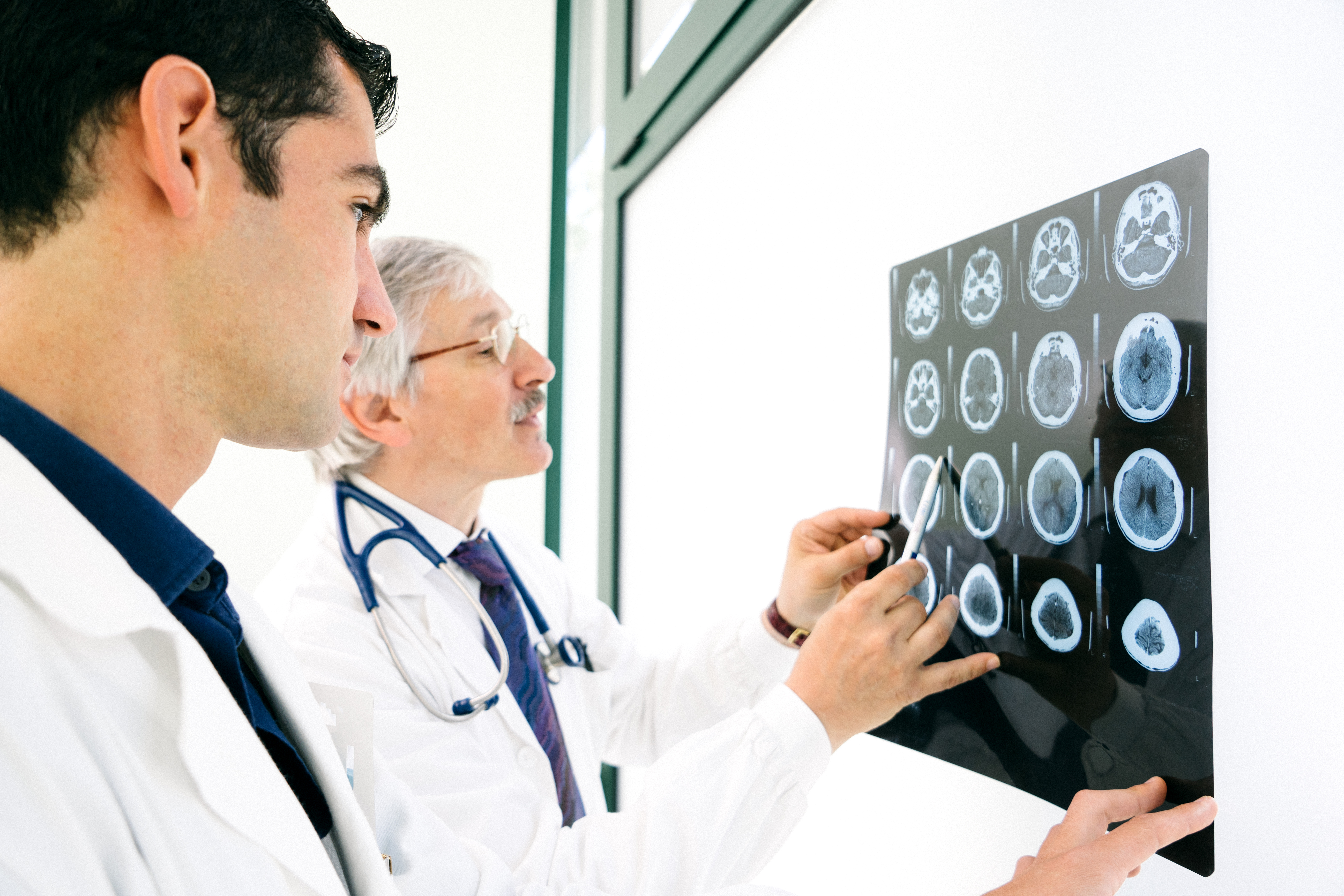 Doctors consult over an MRI scan of the brain.