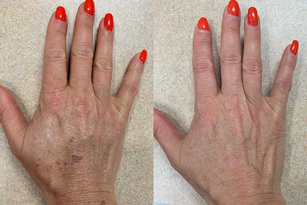 side-by-side photo of hands, one with a sunspot, the other with it removed