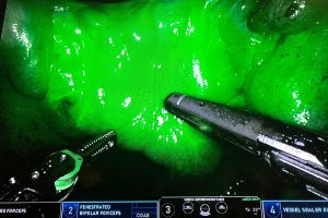 Image from robot-assisted surgery using dye